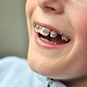 Orthodontisten